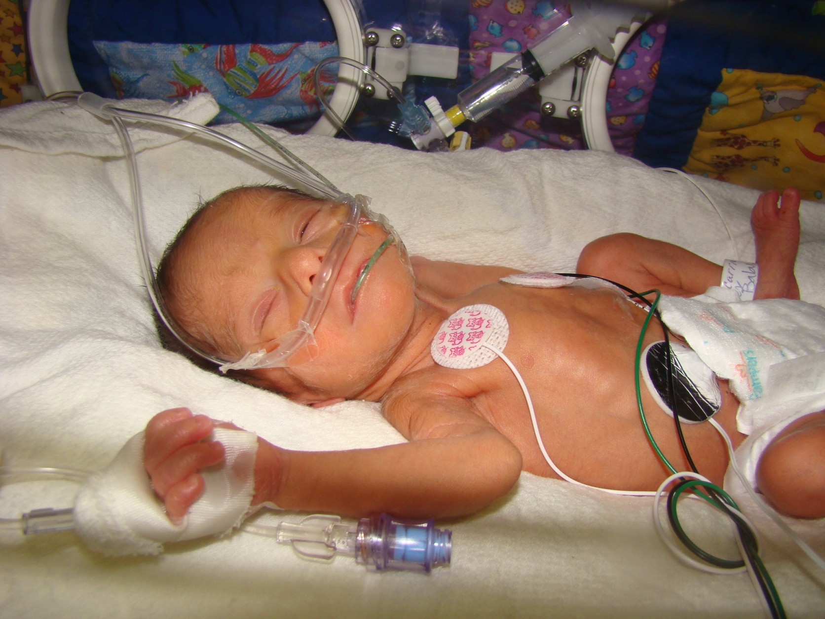 <em>Emma in the NICU</em>